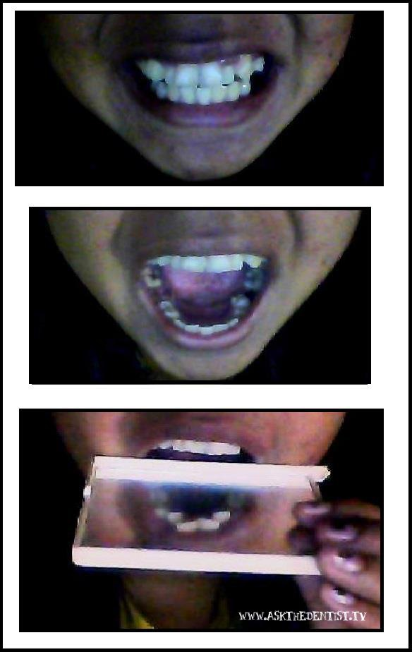 For Braces: Malabong picture very useful.