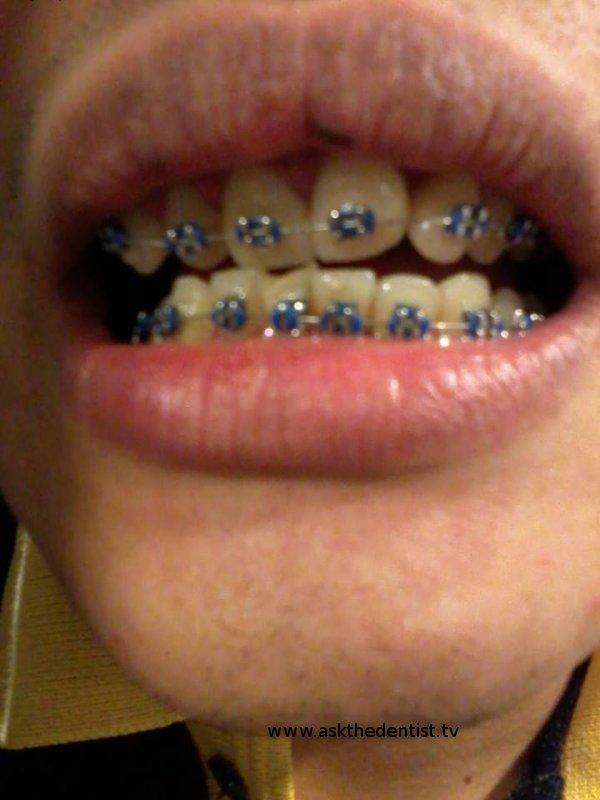 Goma daw sa braces