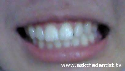 Kailangan ba ng braces