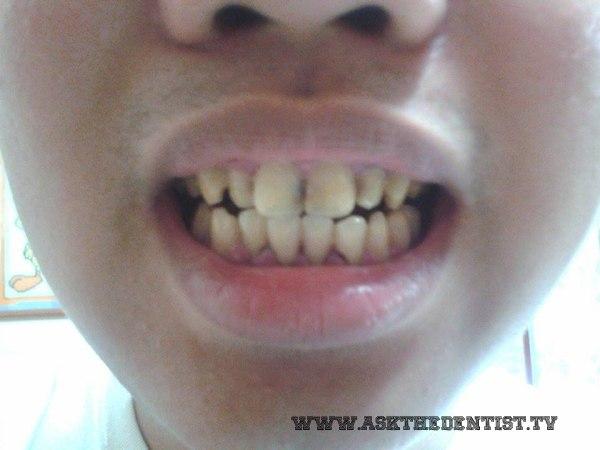Yellow teeth.