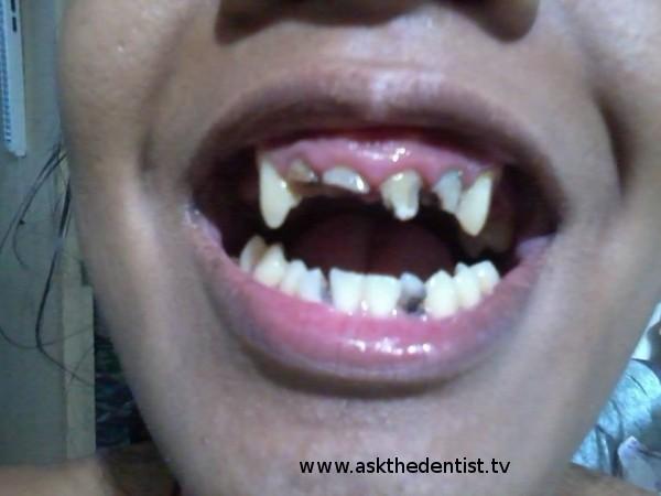 Pwede ba i-dental crowns