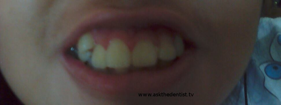 magkano braces