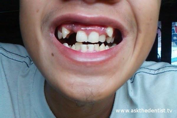 Pwede ba magpa-dental brace